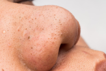 Best Ways to get rid of Blackheads