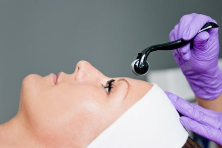Everything You Needed To Know About Skin Needling