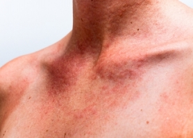 How to repair sun damage to the neck and chest