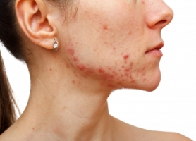 How To Beat Acne Once And For All