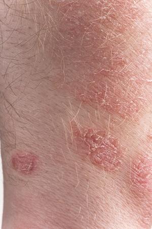 psoriasis dermatitis